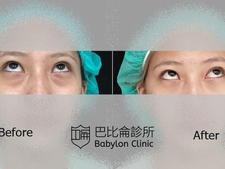 巴比侖三種無痕眼袋手術怎麼選 ?