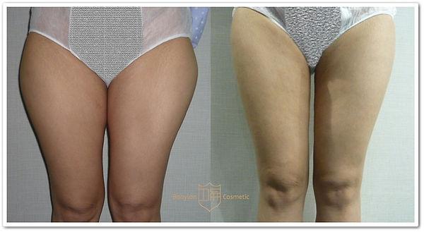 大腿內外側抽脂