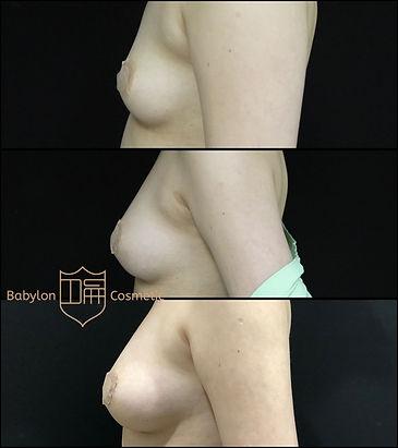 自體脂肪隆乳胸