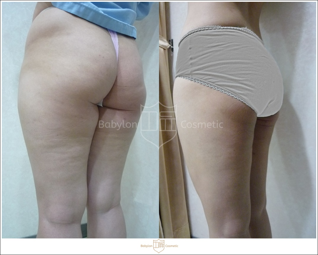 大腿內外側臀髖抽脂