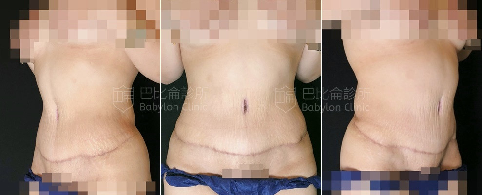 大型腹部拉皮需更換肚臍位置,同時合併了腹直肌整形術, 即使小腹完全放鬆也不會凸出。