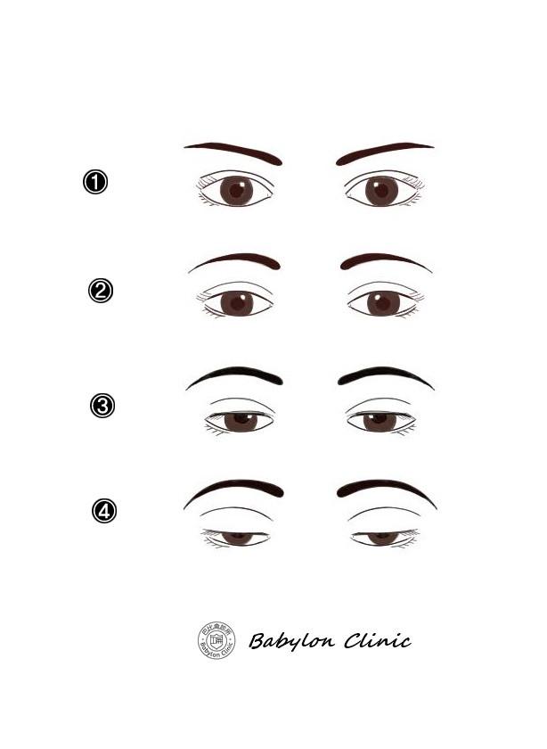 1. 正常瞳孔呈現的大小是上眼瞼蓋住黑眼珠2mm以內 , 2.輕度下垂:眼瞼遮蔽黑眼珠達2mm,  3.中度下垂:眼瞼遮蔽黑眼珠達3mm, 4. 重度下垂:眼瞼遮蔽黑眼珠達4mm或以上