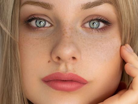Debunking Dermatology Myths – Freckles, Moles & SPF