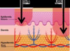 UV-A,UV-B,太陽紫外線ダメージ,日盾\HITATE UV Care Lab.,