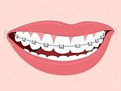 braces3.jpg
