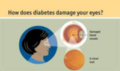 People with diabetes should be getting their eyes examined at least once a year. There are usually no symptoms or pain of Diabetic Eye Disease until it becomes severe. Between 40 - 45 percent of diabetic people have some form of diabetic retinopathy. There are several complications that may result in those with diabetes, such as:      Diabetic Retinopathy - This is the most common diabetic eye disease, and is a leading cause of blindness in (American) adults. This affects the retinal blood vessels in which some may swell and leak fluid, or abnormal new blood vessels may grow on the retinal surface. Each symptom gone untreated can result in vision loss or even blindness. Cataracts - Clouding of the lens. They can develop at an earlier age in people with diabetes