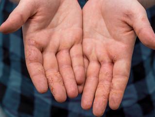 汗皰疹 (Dyshidrotic Eczema)
