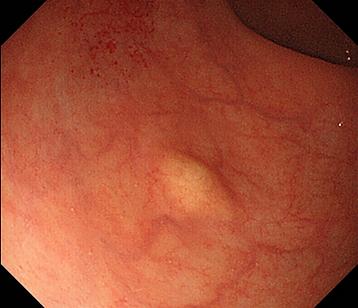 直腸NET(neuroendocrine tumor).png