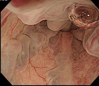 食道静脈瘤.jpg