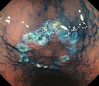 早期胃がんマーキング.jpg