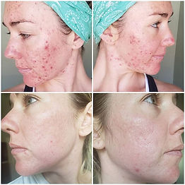 Treating acne doesn't happend overnight