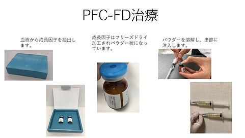 PFC-FD注入E38080患者様説明用.pptx-1.jpg