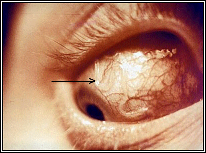 Ocular larva migrans
