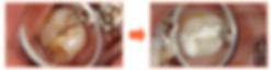武蔵小杉 ららテラス 歯医者 武蔵小杉 歯医者 グランツリー 外科 歯医者 武蔵小杉 武蔵小杉 歯医者 仁愛 武蔵小杉 歯医者 女医 武蔵小杉 ダイエー 歯医者 武蔵小杉 歯医者 土日 武蔵小杉 歯医者 土曜日 武蔵小杉 歯医者 バイト 武蔵小杉 歯医者 美人 武蔵小杉 歯医者 パークシティ 武蔵小杉 歯医者 ララテラス 武蔵小杉 歯医者 21時 武蔵小杉 歯医者 2ch 武蔵小杉 歯科医院 武蔵小杉 歯科医院 口コミ 武蔵小杉 歯科医院 求人 武蔵小杉 歯科医院 評判 武蔵小杉 歯科医院 おすすめ 武蔵小杉 歯科医院 土日 武蔵小杉 デンタルクリニック 武蔵小杉 デンタルクリニック 口コミ 武蔵小杉 デンタルオフィス 武蔵小杉 ホワイトニング 武蔵小杉 ホワイトニング 口コミ 武蔵小杉 審美歯科 武蔵小杉 審美歯科 口コミ 武蔵小杉 審美歯科 評判 武蔵小杉 虫歯治療 武蔵小杉 虫歯 武蔵小杉 歯医者 虫歯 武蔵小杉 歯医者 痛くない 武蔵小杉 歯医者 削らない 武蔵小杉 歯科 削らない 武蔵小杉 小児歯科 武蔵小杉 小児歯科 口コミ 武蔵小杉 小児歯科 専門 武蔵小杉 インプラント 武蔵小杉 インプラント 評判 武蔵小杉 インプラントセンター 武蔵小杉 インプラント 口コミ 武蔵小杉 歯科 インプラント 武蔵小杉 入れ歯 武蔵小杉 歯科 義歯 武蔵小杉 歯周病専門医 武蔵小杉 歯周病 歯周病治療 武蔵小杉 日吉 歯医者 日吉 歯医者 夜 日吉 歯医者 うしかい 日吉 歯医者 口コミ 日吉 歯医者 ながい 日吉 歯医者 日曜日 日吉 歯医者 仁愛会 日吉 歯医者 斉藤歯科クリニック 日吉 歯医者 斉藤 日吉 歯科医院 日吉 歯科医院 口コミ 港北区 日吉 歯科医院 熊本 日吉 歯科医院 横浜市港北区 日吉 歯科医院 日吉 デンタルクリニック 日吉 デンタル 日吉 デンタルオフィス 眞美 デンタルオフィス 日吉 日吉 ホワイトニング 歯医者 日吉 ホワイトニング もりや歯科 日吉 ホワイトニング 日吉 審美歯科 日吉 虫歯 日吉 歯医者 虫歯 日吉 痛くない歯医者エール歯科クリニック 日吉 歯医者 痛くない 痛くない歯医者 日吉 日吉 小児歯科 日吉 小児歯科 評判 日吉 小児歯科 口コミ 横浜市港北区 日吉 小児歯科 綱島 日吉 小児歯科 小児歯科 日吉 おすすめ