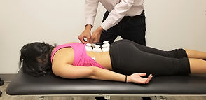 Cupping Therapy at Physis Physical Therapy