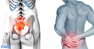 Physical therapy for SI joint pain