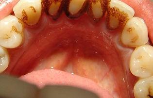 dentes-com-nicotina-460x295.jpg
