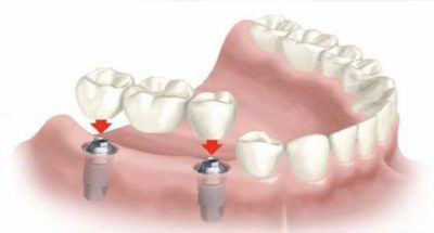implantes-dentarios-400x215.jpg