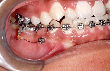 mini-implantes-01-1-460x295.jpg