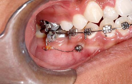 mini-implantes-02-1-460x295.jpg