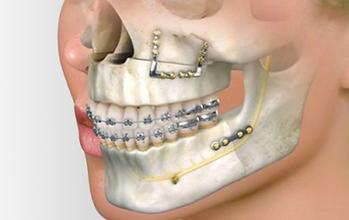 orto-cirurgico-400x252.png