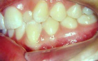 tratamento-sem-extracoes-de-dentes-03-32