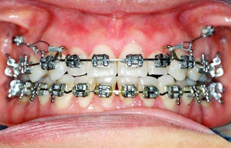 mini-implantes-02-460x295.jpg