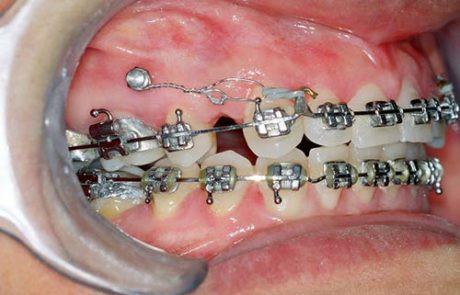 mini-implantes-01-460x295.jpg