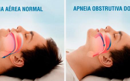 Por trás de um simples ronco pode estar presente a Síndrome da Apneia Obstrutiva do Sono