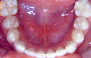 tratamento-sem-extracoes-de-dentes-09-32