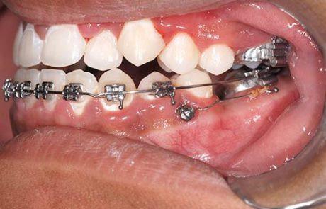 mini-implantes-03-1-460x295.jpg
