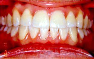 tratamento-sem-extracoes-de-dentes-06-32
