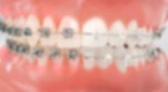 brackets-metalicos-ou-esteticos-400x220.