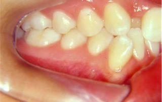 tratamento-sem-extracoes-de-dentes-01-32