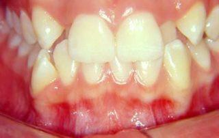 tratamento-sem-extracoes-de-dentes-02-32