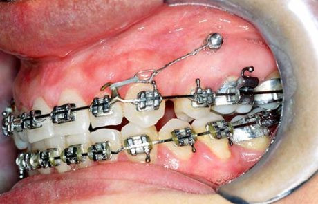 mini-implantes-03-460x295.jpg