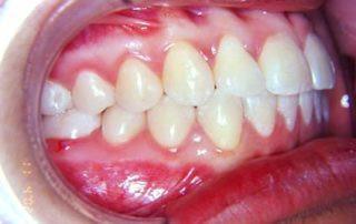tratamento-sem-extracoes-de-dentes-05-32