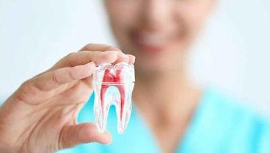 tratamentos-sem-extracao-de-dentes-400x2