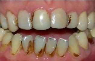 dentes-com-nicotina-02-460x295.jpg
