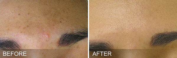 before-after-BrownSpots.jpg