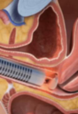 tensado-vaginal-laser (1).png