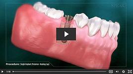 Implants 2020-06-19 123058.jpg