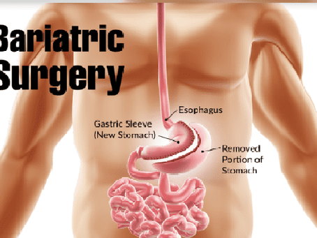Bariatric Surgery: A Crock of Weight