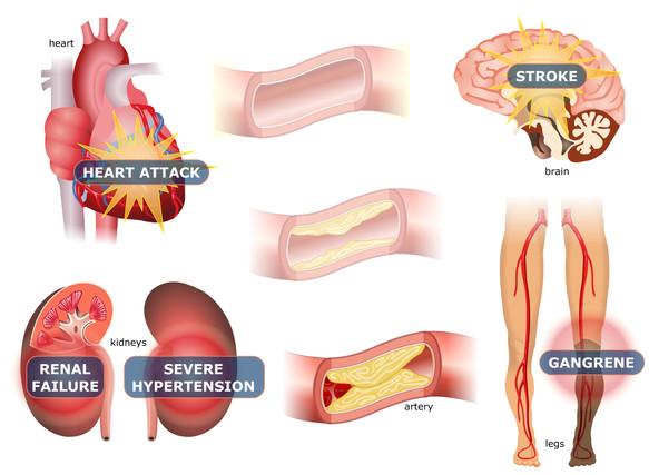 Cardiowellness