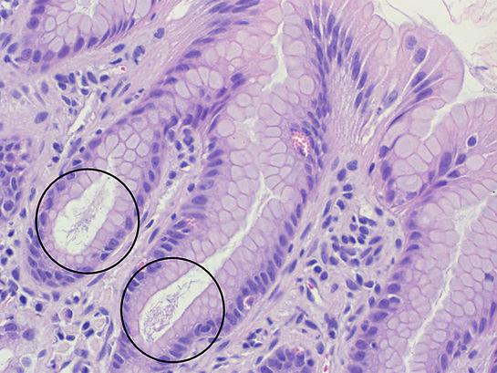 Helicobacter 400x_web.jpg