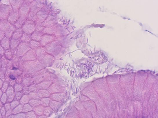 Helicobacter 1000x_web.jpg