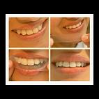Z Smile Testimonial Leila 4 Pics.png