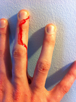 cut-finger_10860300006_o