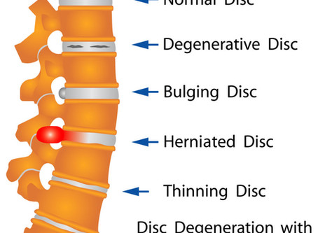 Common Car Accident Related Soft Tissue Injury: The Herniated Disc