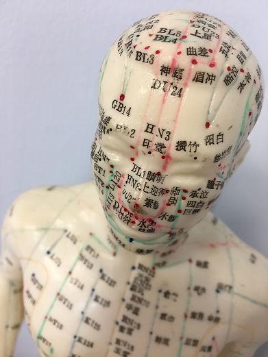 acupuncture-4207760_1920.jpg